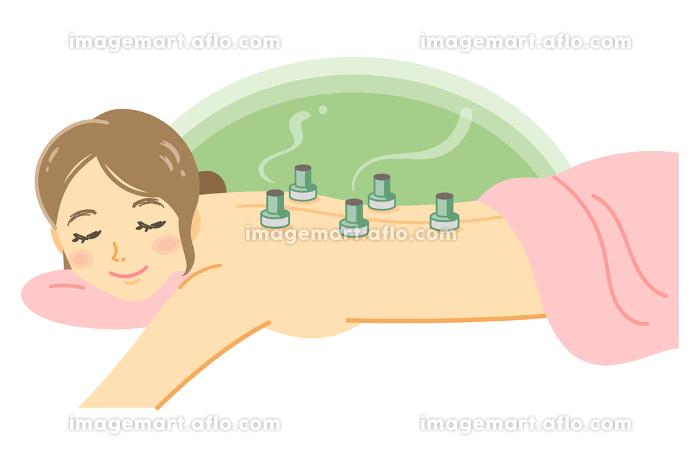 お灸の施術を受ける女性