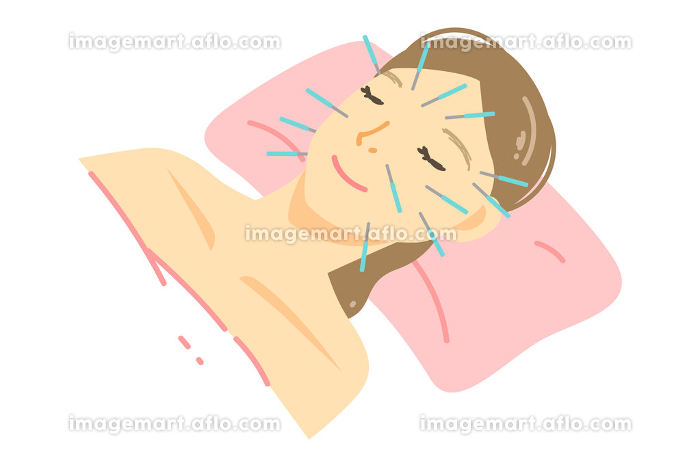 美容鍼の施術を受ける女性のイラスト