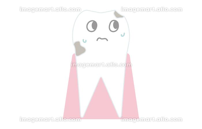 虫歯の進行、歯の表面が溶け出すの販売画像