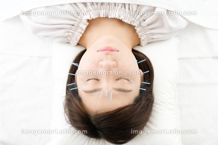 鍼灸院で顔に鍼を打たれる女性のアップの販売画像